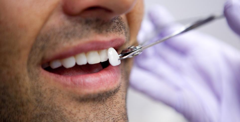 granulomul dentar